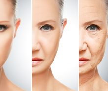 Modern ways of skin rejuvenation